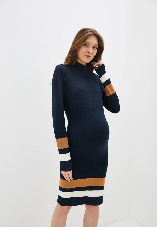 Платье Mamalicious Mamalicious MA101EWFKKL9 платье mamalicious mamalicious ma101ewukv87